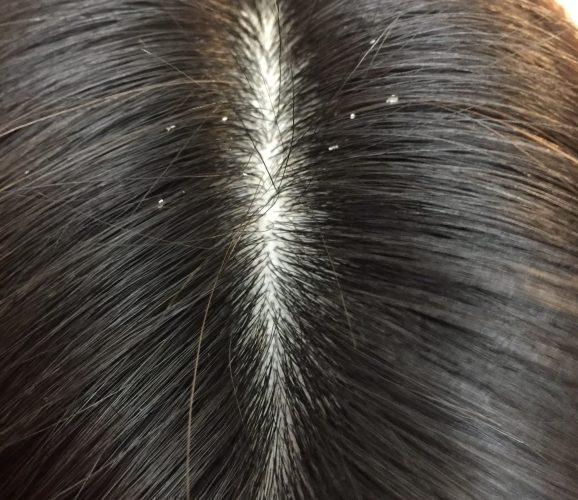 でこぼこ 頭皮 かゆみ 頭がかゆい…頭皮のフケやかさぶたの原因は?薄毛の前兆や原因となる場合も